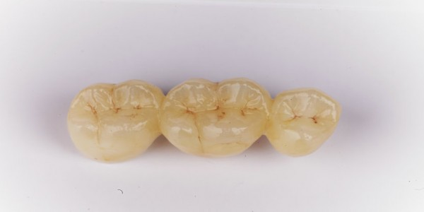 Pre-shaded Zirconia(PHT)